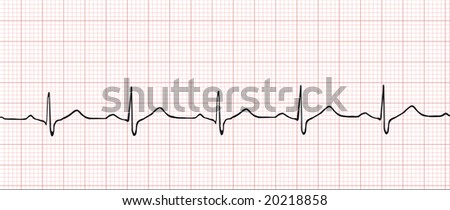 Normal electronic cardiogram vector illustration - stock vector