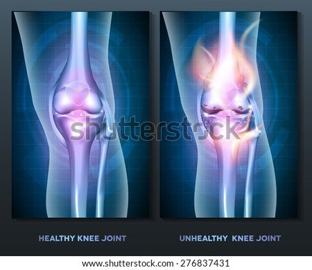 Normal knee and unhealthy abstract burning knee joint - stock vector