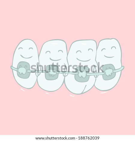 orthodontic treatment (tooth braces) vector illustration, hand drawn - stock vector