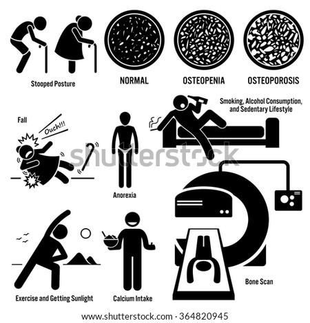 Osteoporosis Old Man Woman Symptoms Risk Factors Prevention Diagnosis Stick Figure Pictogram Icons - stock vector
