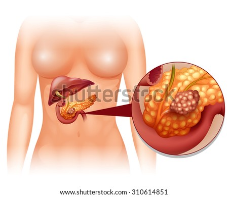 Pancreas cancer in woman illustration - stock vector