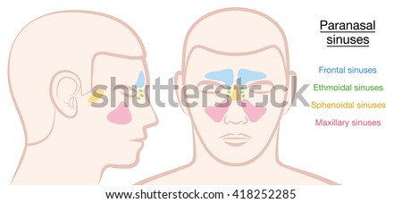 Paranasal sinuses on a male face in different colors - frontal, ethmoidal, sphenoidal and maxillary sinuses. Isolated vector illustration on white background. - stock vector
