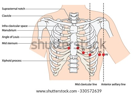 Placement of ecg ekg leads showing the ribs and sternum, the mid clavicular line and the anterior axillary line.  - stock vector