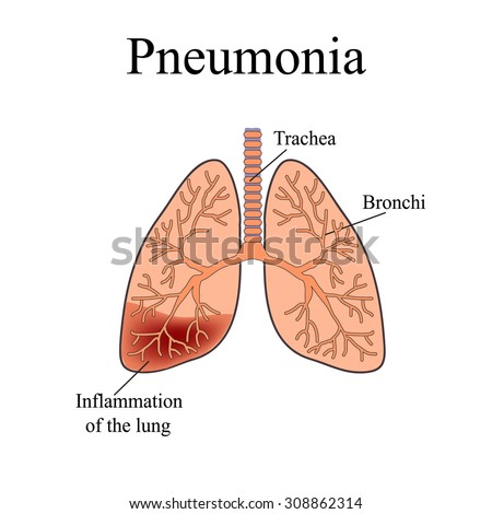 Pneumonia anatomical structure human lung vector em vetor stock the anatomical structure of the human lung vector illustration on isolated background ccuart Choice Image