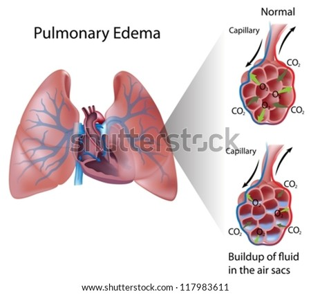 Pulmonary edema - stock vector