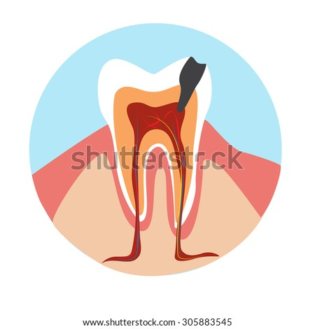 pulp inflammation illustration.pulpitis illustration. tooth modern medical infographics,  dental disease. bad tooth on the white background. tooth with caries illustration  - stock vector