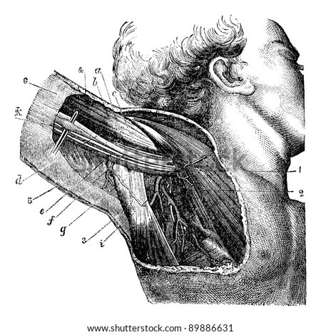 Region of the armpit., vintage engraved illustration. Usual Medicine Dictionary by Dr Labarthe - 1885 - stock vector