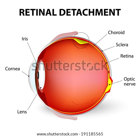 Retinal detachment is an eye disease in which the part containing the optic nerve is removed from its usual position at the back of the eye. - stock vector