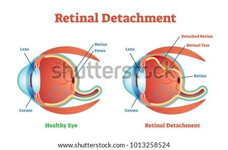 Retinal Detachment Vector Illustration Diagram Anatomical Stock