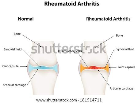 Rheumatoid Arthritis Synovial Joint - stock vector