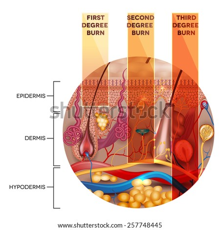 Round shape skin anatomy and skin burn classification stages on a white background - stock vector