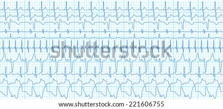 Seamless pattern of the ekg cardiograms set - stock vector
