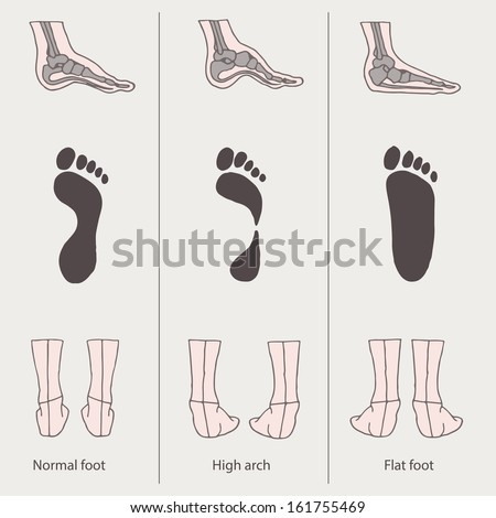set of flat foot, high arch - stock vector