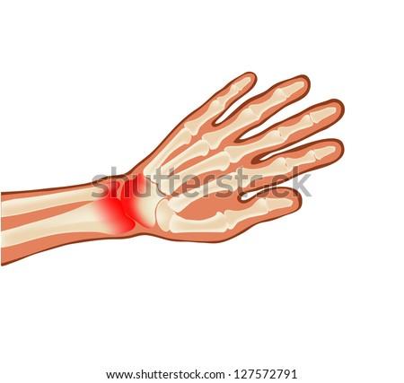 sick hand - stock vector