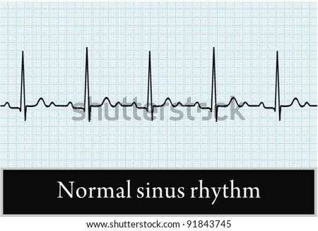 Sinus rhythm on ECG. Vector. Professional information - stock vector