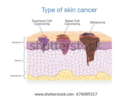 Skin Layer Have 3 Type Cancer Stock Vector 676089217