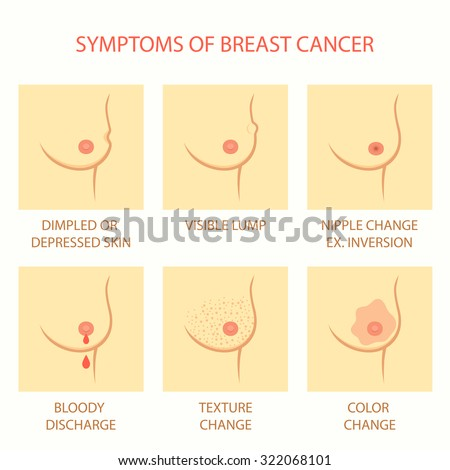 skin symptoms of breast cancer, self examination, tumor, body exam - stock vector
