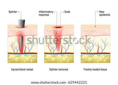 Wound Stock Images Royalty Free Images Amp Vectors