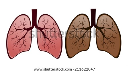 Diagram of a smokers lungs and color information of wiring diagram smokers lung versus healthy lung stock vector 211622047 shutterstock rh shutterstock com picture diagram of lungs healthy the basic diagram of lungs ccuart Images