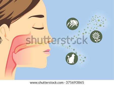 Something that cause allergic reactions include pollen, dust particles and animal - stock vector