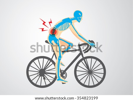 Spine pain symptoms of biker from workout with cycling. Medical and sport illustration. - stock vector