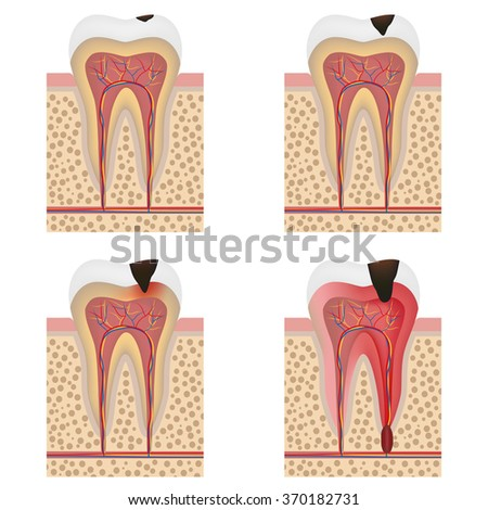 Stages of tooth decay illustration. Development of dental caries illustration.