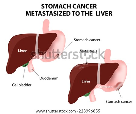 Stomach cancer Metastasized to the  liver. The spread of a cancer from one organ to another. Mets. - stock vector