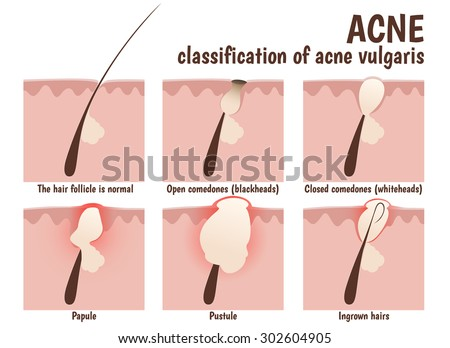 pustule stock images, royalty-free images & vectors | shutterstock, Skeleton