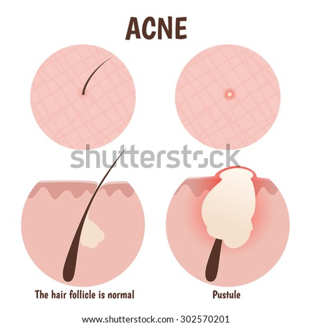 problem skin pustules acne open blackheads stock vector 302483249, Skeleton