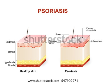 Symptoms of psoriasis. Normal skin and psoriasis. plaque psoriasis