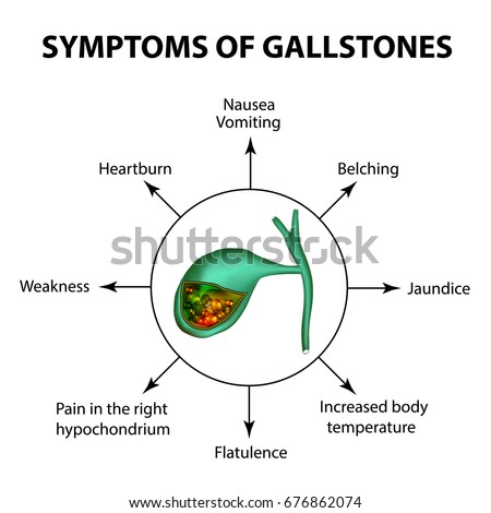 Symptoms stones gallbladder infographics vector illustration stock symptoms of stones in the gallbladder infographics vector illustration on isolated background ccuart Images
