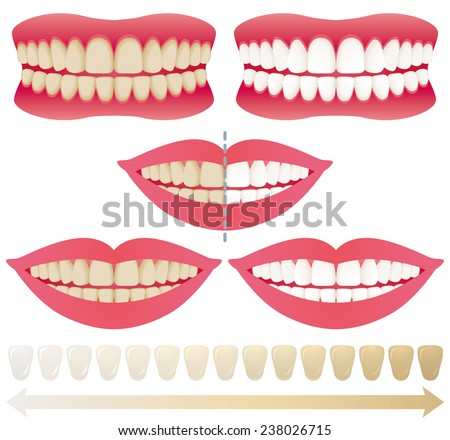 teeth whitening. before and after. - stock vector