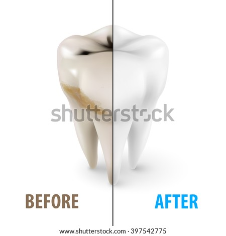 Teeth Whitening Icon, Dentist Symbol in Isometric Style on White - stock vector