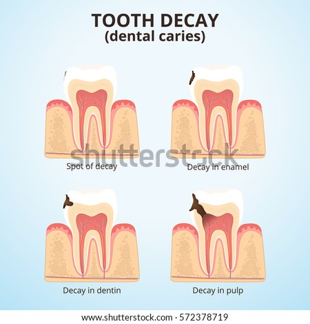 physiology of periodontal and dental problems essay On all aspects of periodontology, periodontal health and  to dental and periodontal problems chapter  in periodontal anatomy, physiology,.