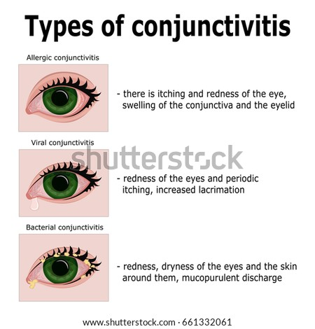conjunctivitis stock images, royalty-free images & vectors, Skeleton