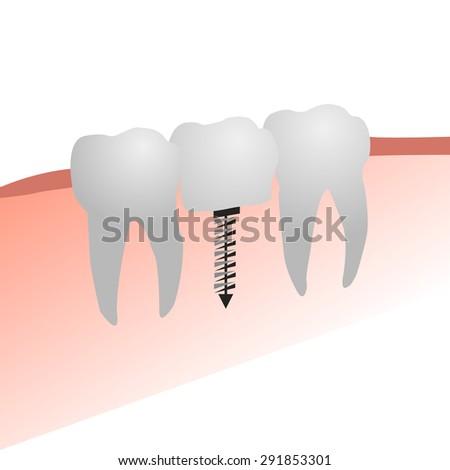 three teeth, dental implant - stock vector