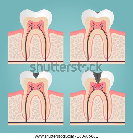 tooth anatomy and damage, cut teeth in the gums vector illustration - stock vector
