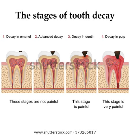Tooth decay formation step by step, forming dental plaque and finally caries and cavity