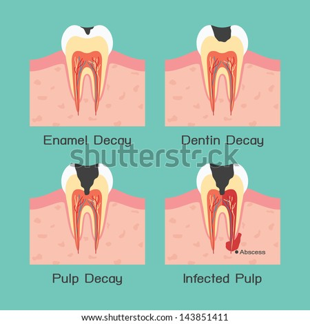 Tooth decay, vector - stock vector