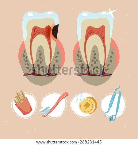tooth structure. tooth with caries. dental floss, dentist tools, toothpicks, toothbrush with toothpaste icon set - stock vector
