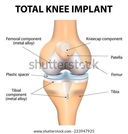 Total Knee Replacement. Knee implant. Vector - stock vector