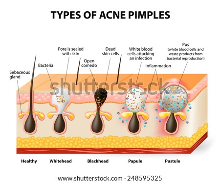 Types of acne pimples. Healthy skin, Whiteheads and Blackheads, Papules and Pustules - stock vector