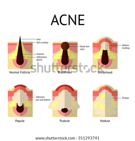 Types of acne pimples. Healthy skin, Whiteheads and Blackheads, Papules and Pustules in flat style. - stock vector