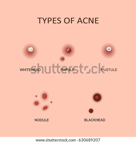 types acne pimples vector illustration flat stock vector 630689207, Cephalic Vein