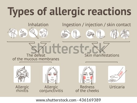 Types of allergic reactions. Scheme - stock vector