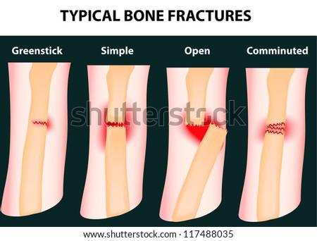 Typical bone fractures. Vector scheme - stock vector