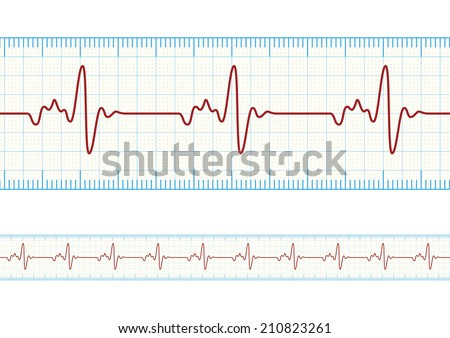Vector electrocardiography / ECG on the Powder Blue grid paper, eps10 - stock vector