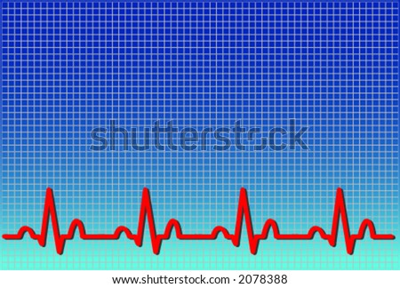Vector format of an ecg ekg. The waveform is accurate and represents a real life normal ekg - stock vector