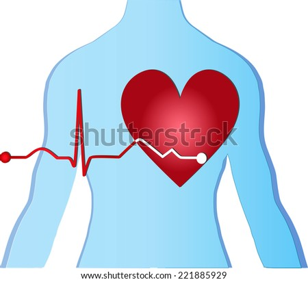 vector heart medical