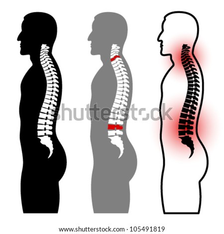 vector human spine silhouettes - stock vector